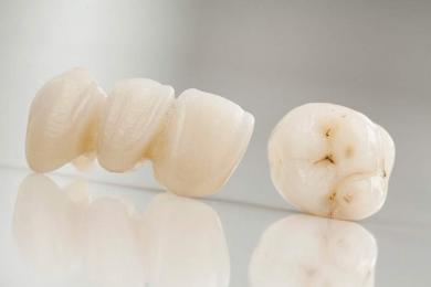Soins dentaires esthétiques